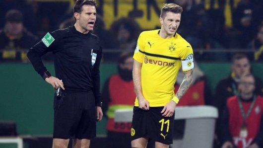 Direkt nach seinem Treffer zum 1:1 packte Marco Reus sich mit schmerzverzerrtem Gesicht an den Oberschenkel.