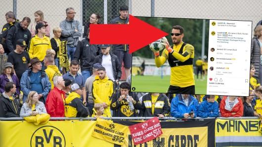 Fans von Borussia Dortmund sind verwundert: Was hat Roman Bürki denn hier auf der Nase?