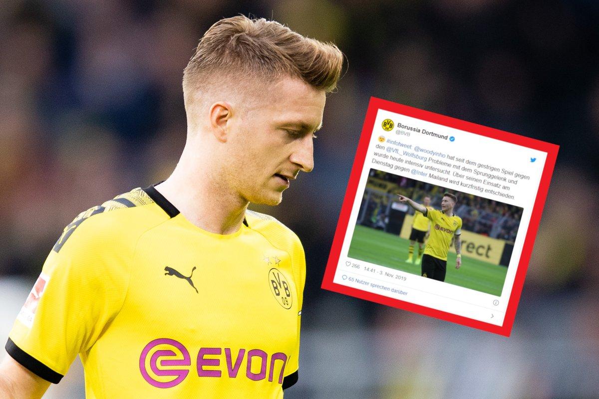 Borussia Dortmund Sorge Um Marco Reus Bvb Macht Hoffnung