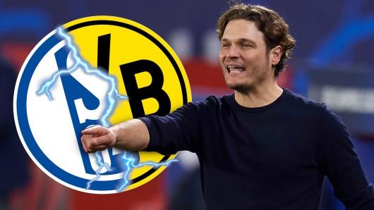 Schalke gegen Dortmund: Von Angst will BVB-Trainer Edin Terzic vor dem Revierderby nichts hören.