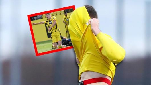 Borussia Dortmund: Rückschlag für ein BVB-Talent.