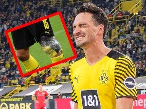 Bei Borussia Dortmund kämpft Mats Hummels weiter mit Patellasehnen-Problemen.