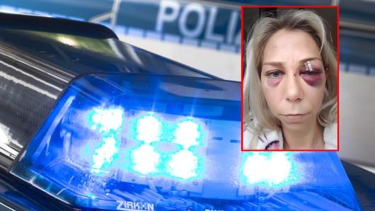 Julia M. (31) wurde von einem unbekannten Mann bei einer Halloween-Party in Gelsenkirchen brutal verprügelt.