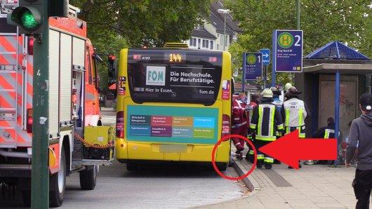 Schlimmer Unfall. Hier klemmt sich eine Frau ihr Bein ein.
