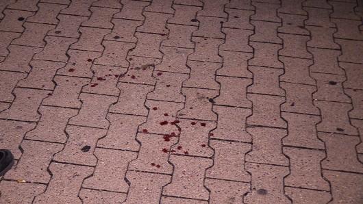 Am Samstagabend ist ein Mann vor der Turbinenhalle Oberhausen durch ein Messer verletzt worden.