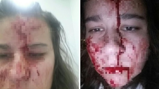 Lisa postete diese Bilder nach einer Raubüberfall in Recklinghausen auf Facebook.