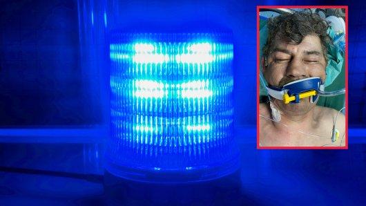 In NRW wurde dieser Mann schwer verletzt gefunden – seine Identität ist unbekannt.