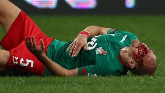 Ex-Schalke-Star Benedikt Höwedes lag nach einem Zusammenprall blutüberströmt am Boden.