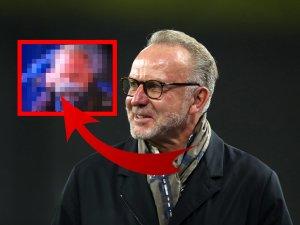 Bei Schalke gegen Bayern verwundert Karl-Heinz Rummenigge mit seinem Outfit.